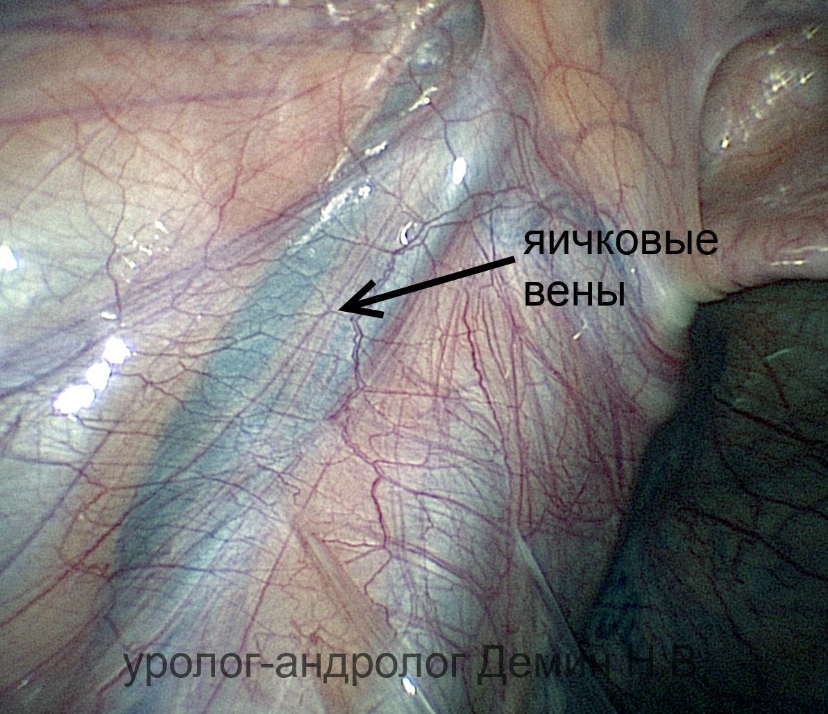 Лапароскопия, расширенные яичковые вены, фото